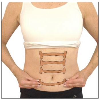 Diastasis Recti TogetherTape™